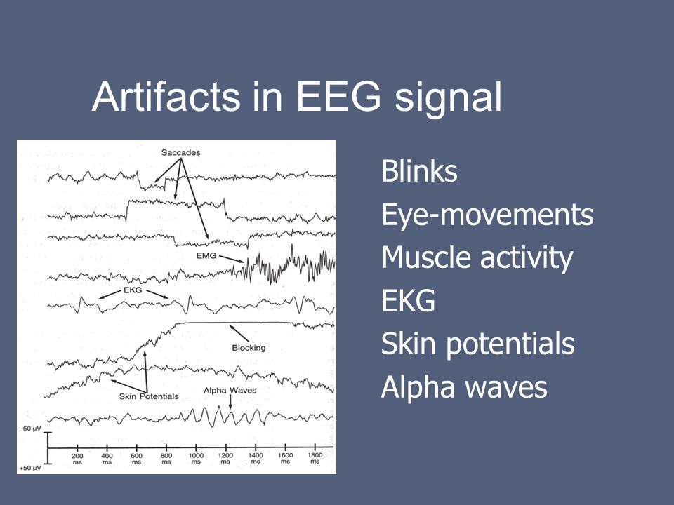 Pre-processing for EEG and MEG - ppt video online download