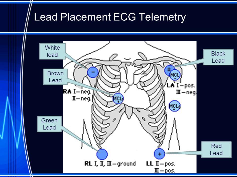 nursing interpretation of the electrocardiogram  ecg