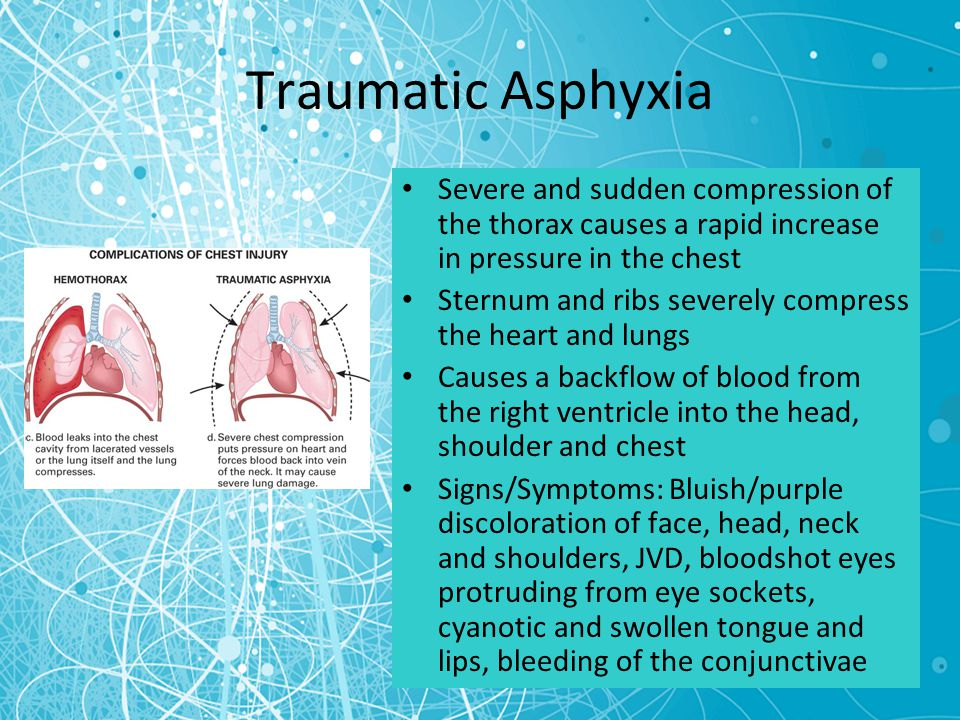 Chest Trauma Chapter ppt video online download