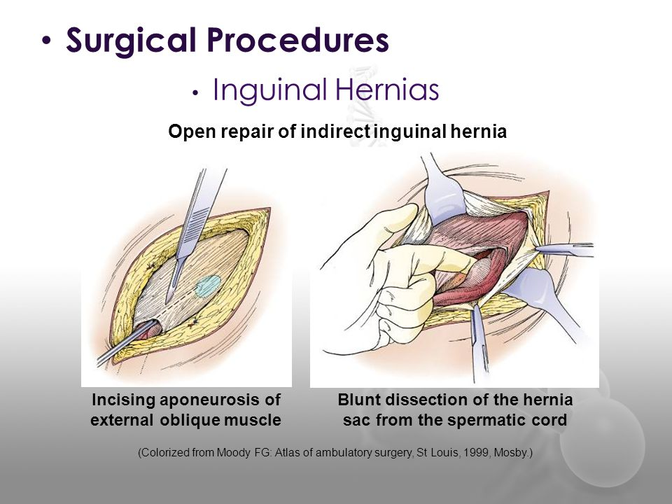 Herniorrhaphy SUR ppt video online download Female Inguinal Hernia Anatomy