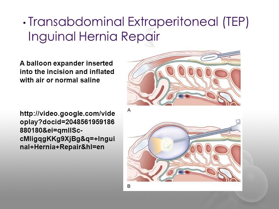 Herniorrhaphy SUR ppt video online download