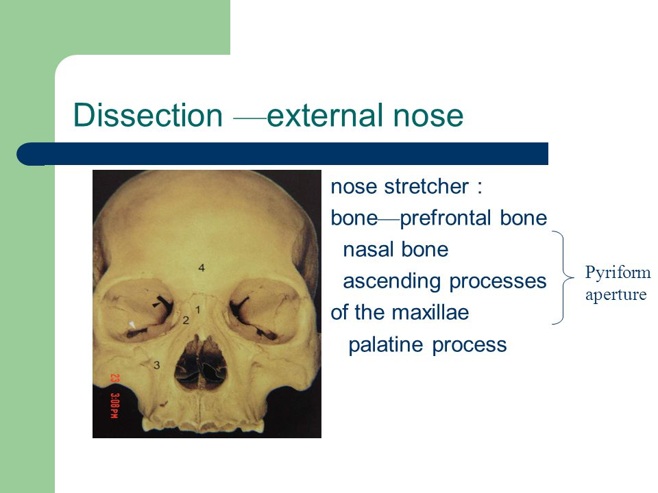 Nasal Dissection And Physiology Ppt Video Online Download