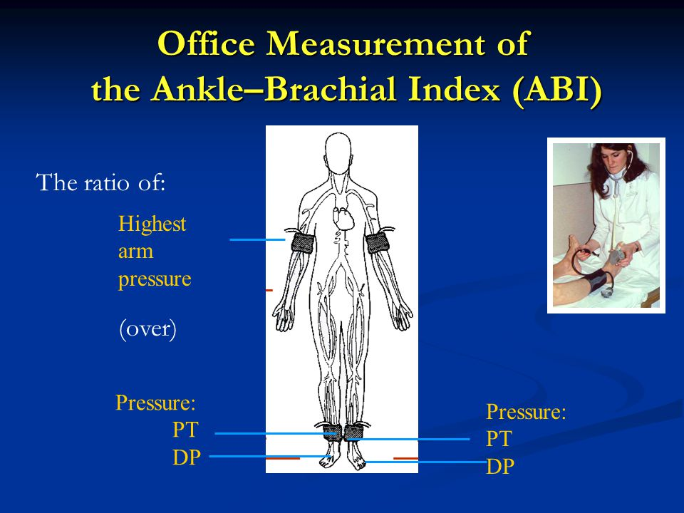 Office Measurement of the Ankle–Brachial Index (ABI)