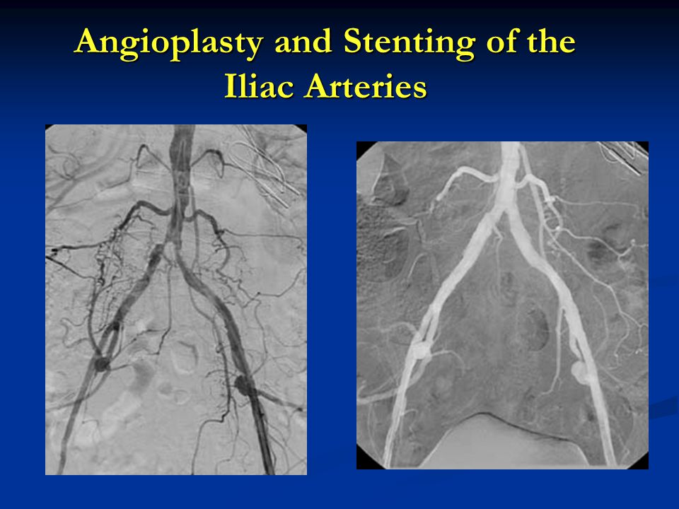 Angioplasty and Stenting of the Iliac Arteries