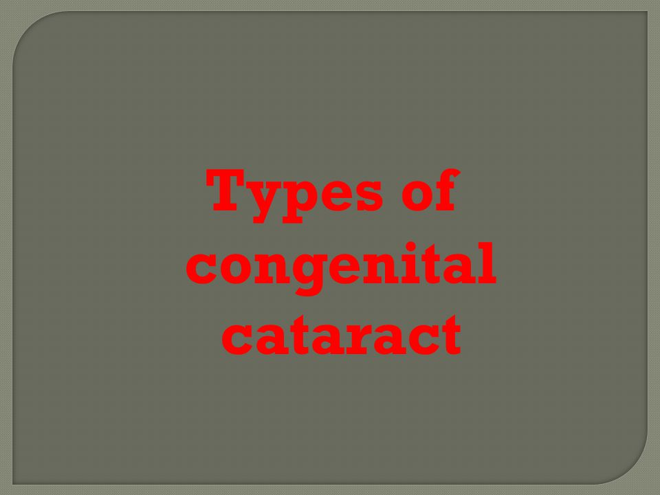 Congenital Cataract Ppt Video Online Download