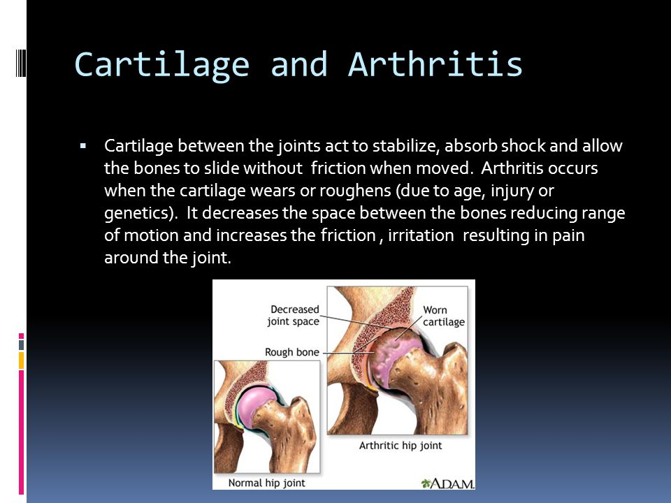 Synovial Joints Tendon And Ligaments Knee Hand Ligament Ppt Download