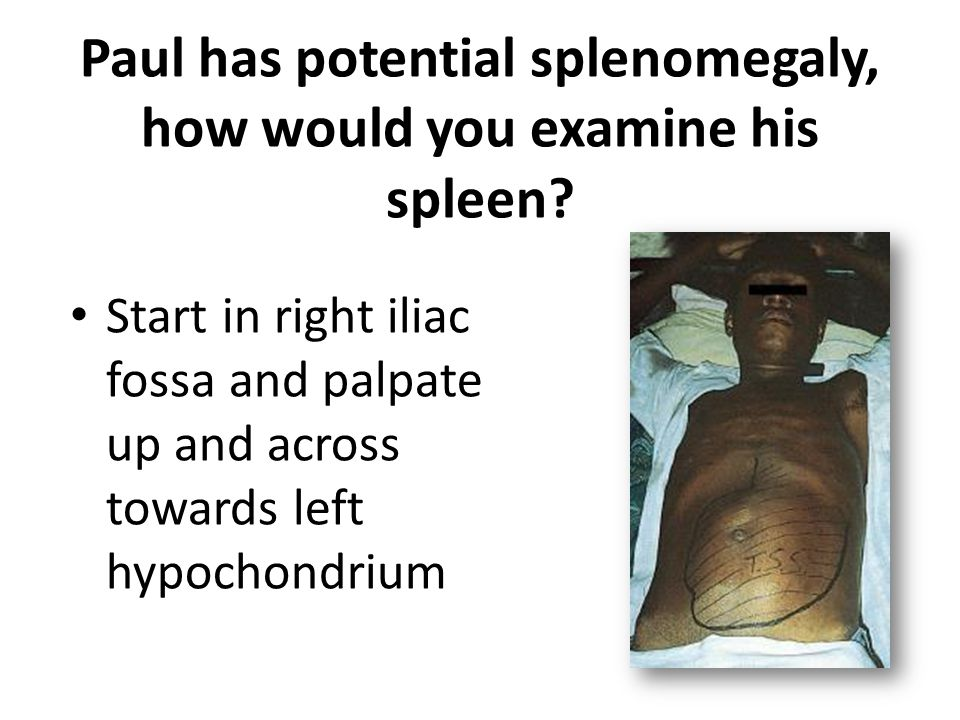 Paul has potential splenomegaly, how would you examine his spleen