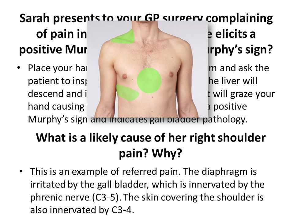 What is a likely cause of her right shoulder pain Why