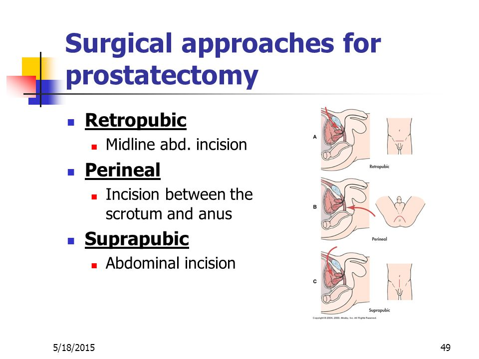 Benign Prostatic Hyperplasia Ppt Video Online Download