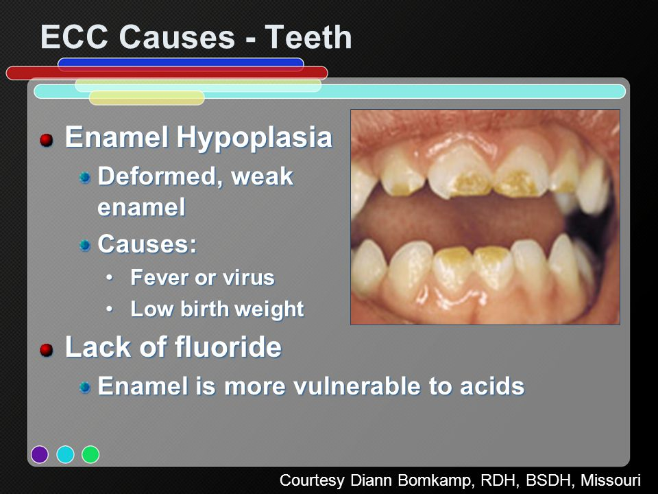 Infant Oral Health Care Ppt Video Online Download