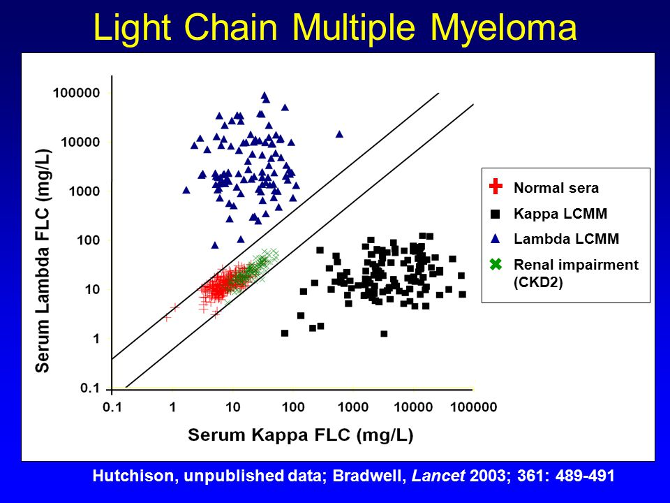 Lambda Light Chain Multiple Myeloma Prognosis