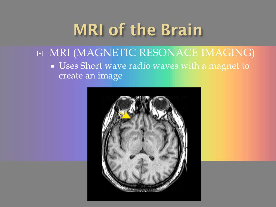 MRI of the Brain MRI (MAGNETIC RESONACE IMAGING)