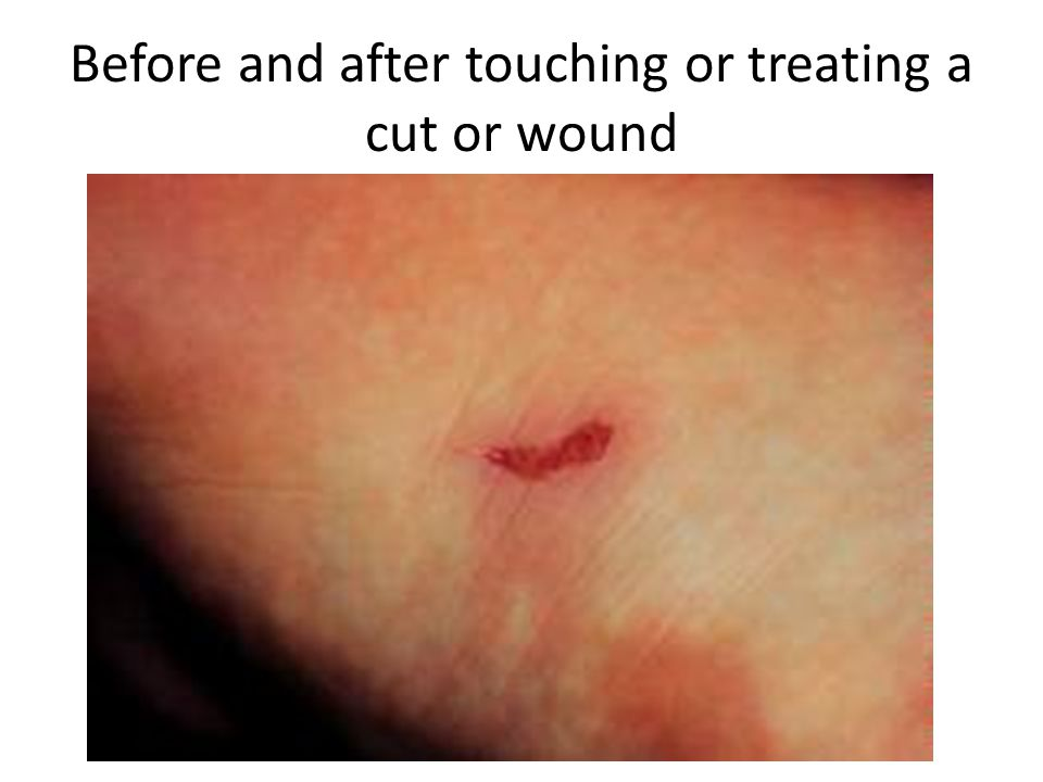 Before and after touching or treating a cut or wound