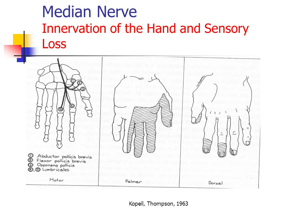 level 5 sensory loss No sensory or motor function below the level of the lesion caused by a complete transection (or severing), severe compression, or extensive vascular impairment to the spinal.