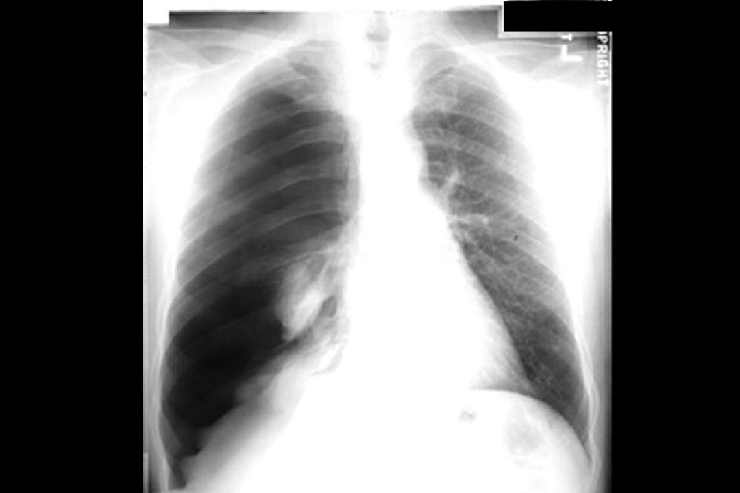 Pneumothorax Relaxation atelectasis Hydro-pneumo Large right hemithorax