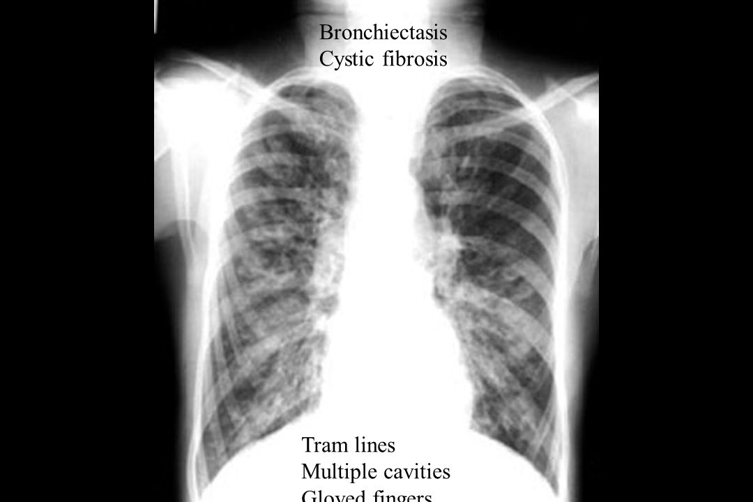 Bronchiectasis Cystic fibrosis Tram lines Multiple cavities Gloved fingers