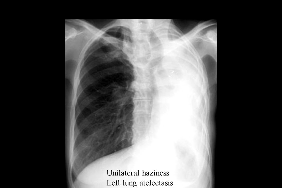 Unilateral haziness Left lung atelectasis