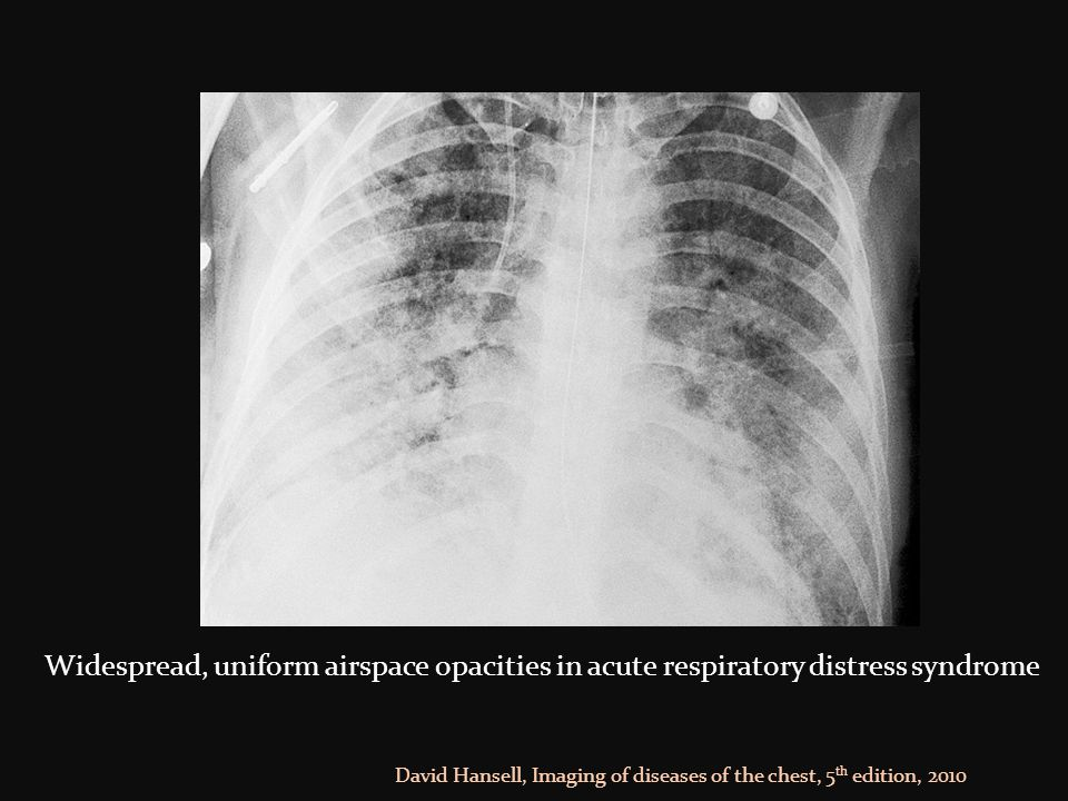 Widespread, uniform airspace opacities in acute respiratory distress syndrome