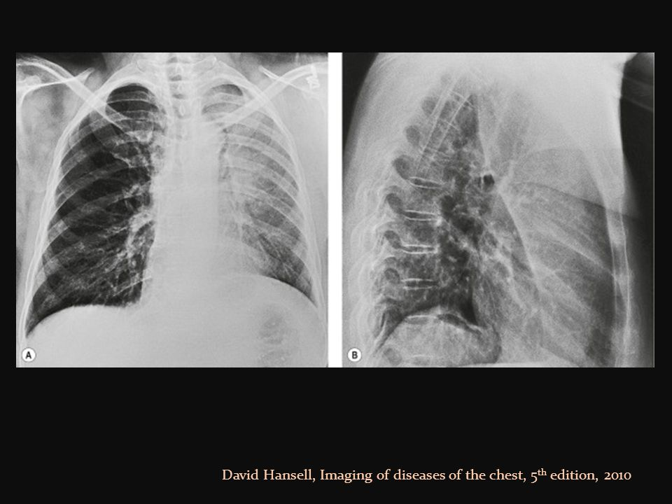 David Hansell, Imaging of diseases of the chest, 5th edition, 2010