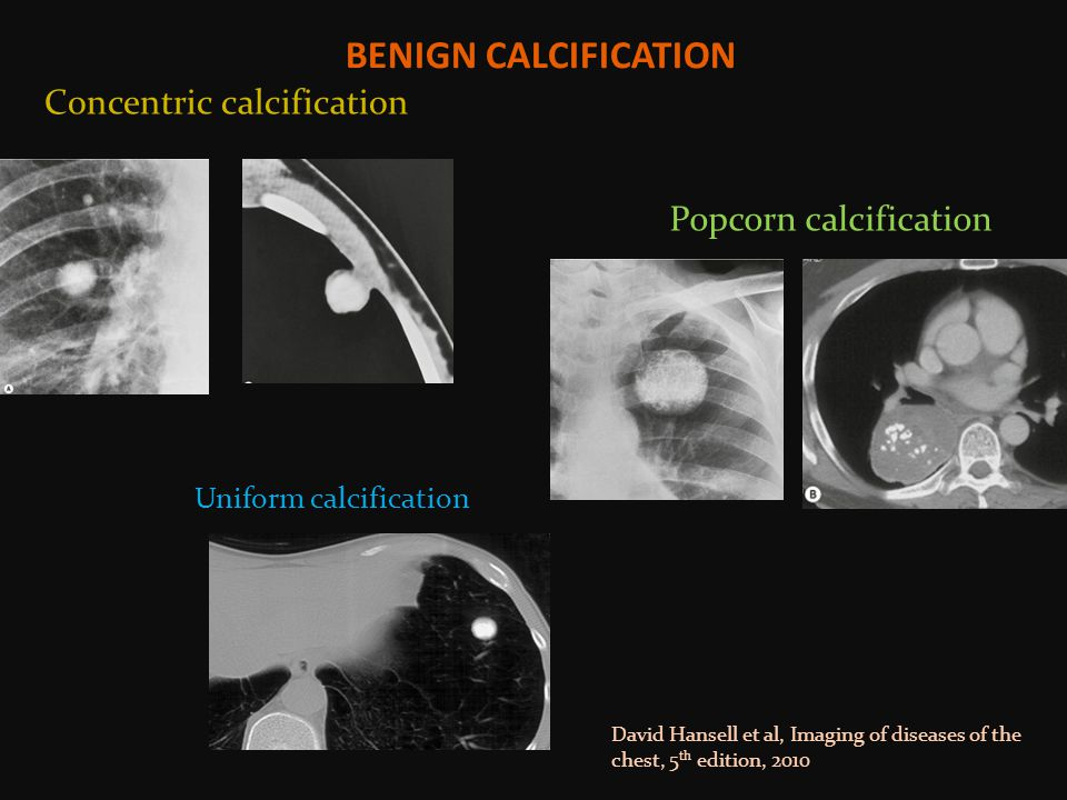BENIGN CALCIFICATION Concentric calcification Popcorn calcification