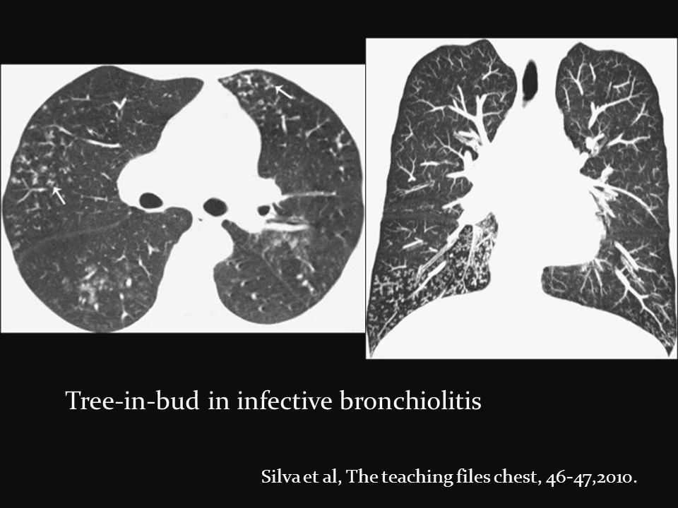 Tree-in-bud in infective bronchiolitis
