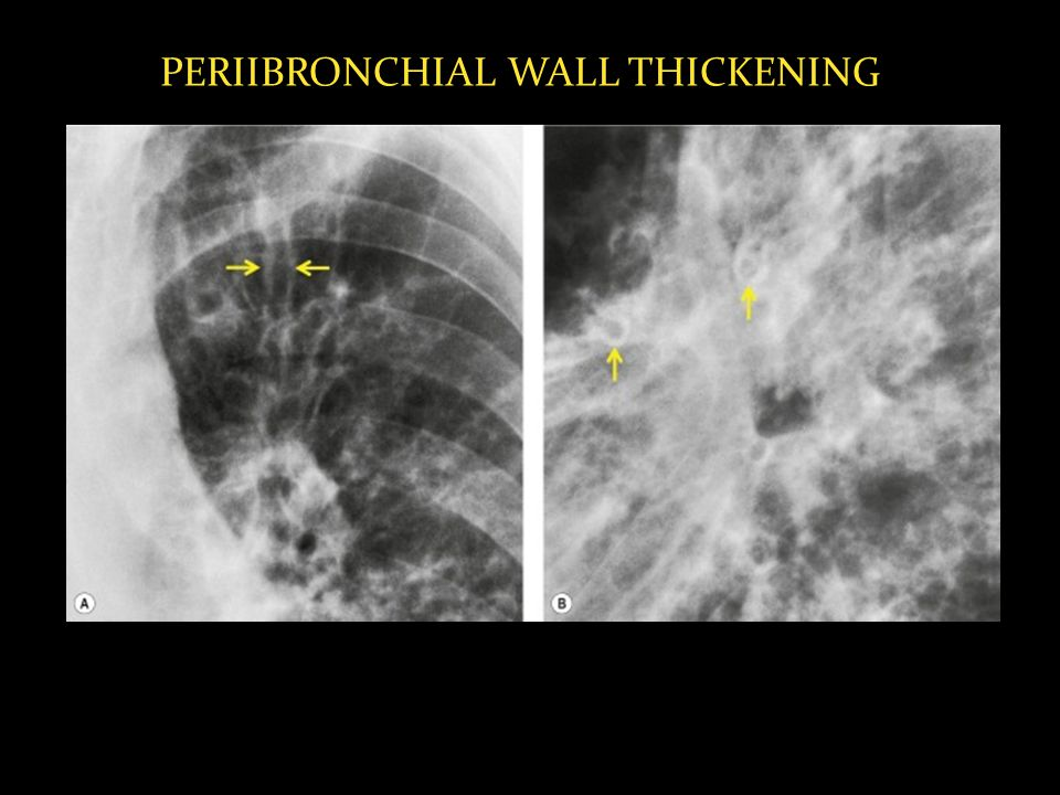 PERIIBRONCHIAL WALL THICKENING