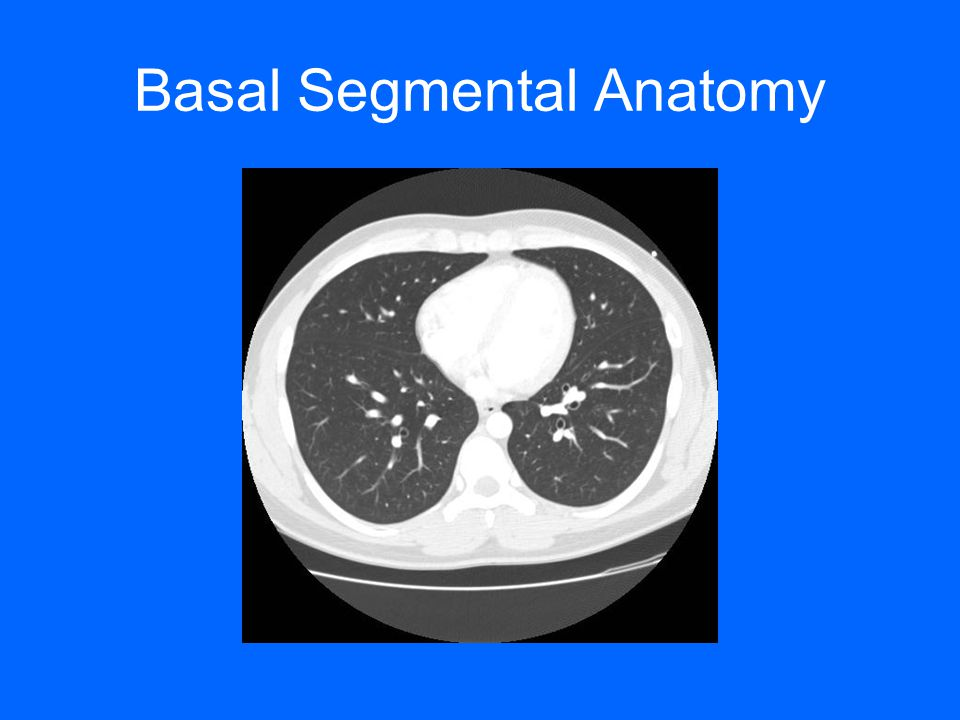Chest Radiology Plain Film and CT- Beyond the Basics - ppt video ...