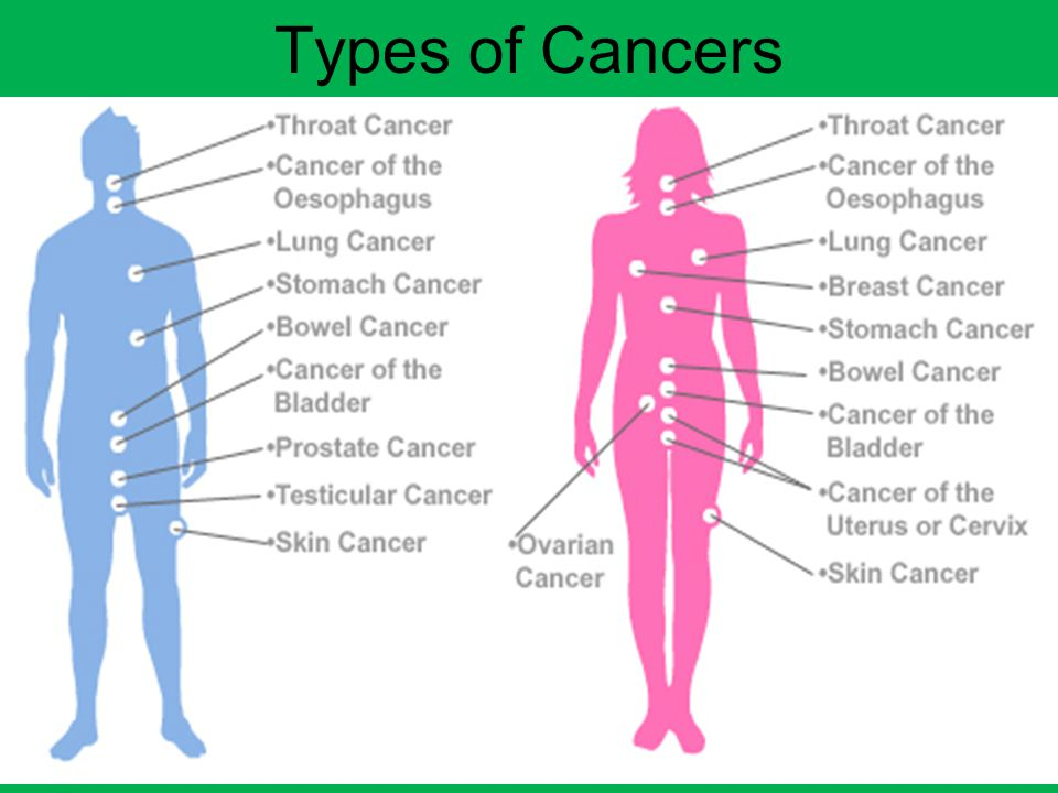 Types of Cancers