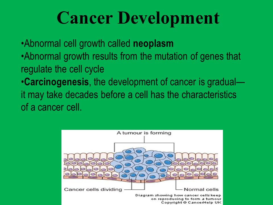 Cancer Development Abnormal cell growth called neoplasm