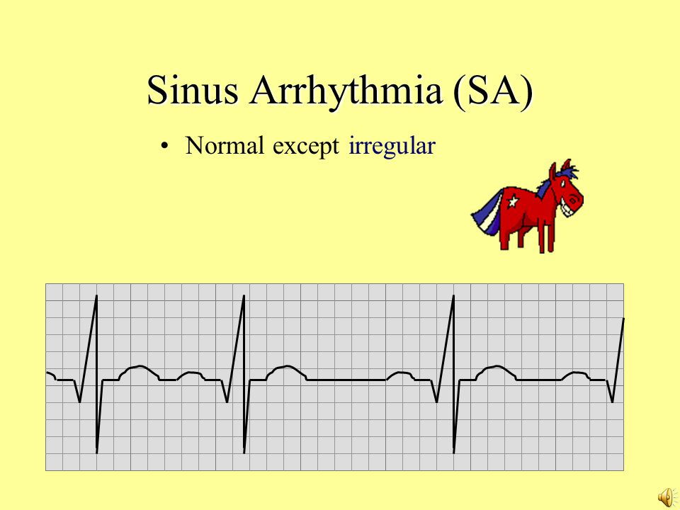 Sinus Arrhythmia (SA) Normal except irregular