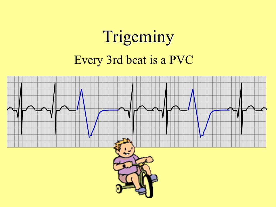 Trigeminy Every 3rd beat is a PVC