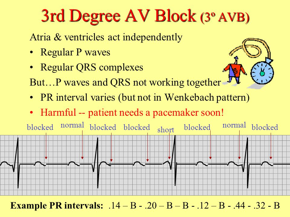3rd Degree AV Block (3º AVB)