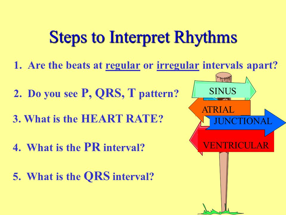 Steps to Interpret Rhythms
