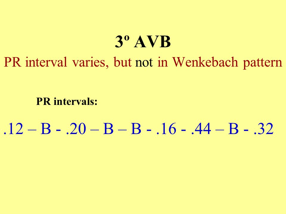 PR interval varies, but not in Wenkebach pattern