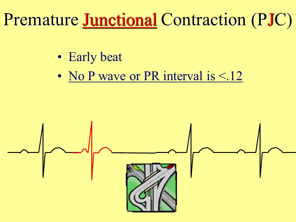 Premature Junctional Contraction (PJC)