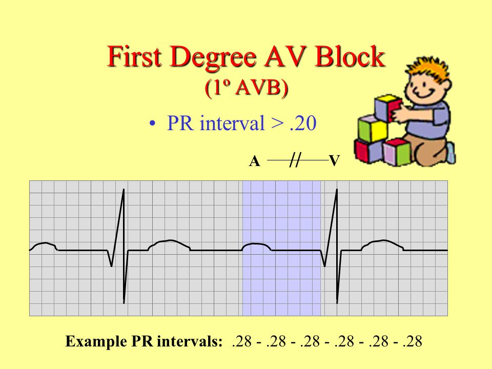 First Degree AV Block (1º AVB)
