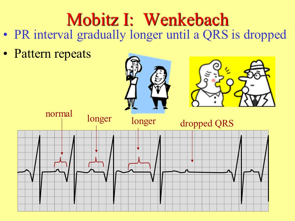 Mobitz I: Wenkebach PR interval gradually longer until a QRS is dropped. Pattern repeats. normal.