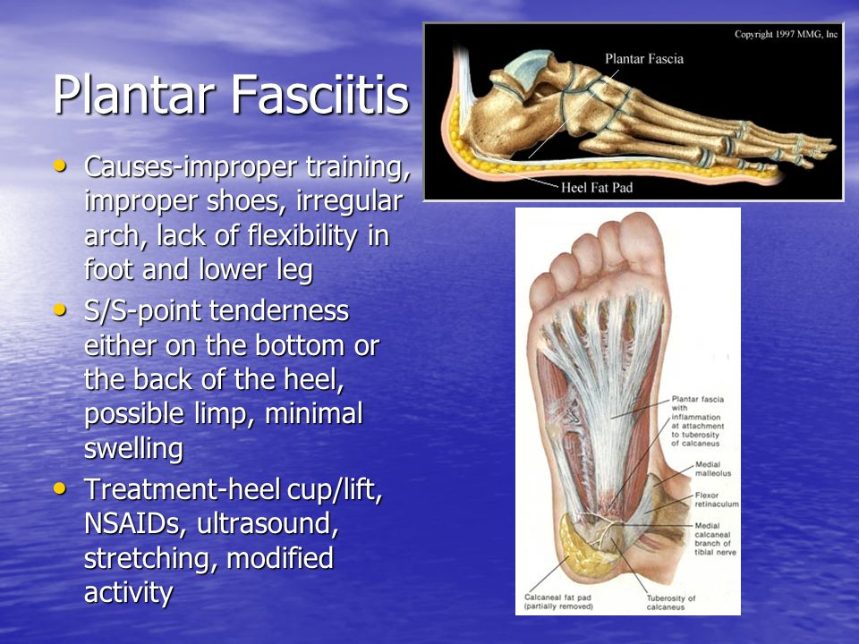 Foot, Ankle, and Lower Leg Injuries - ppt video online download