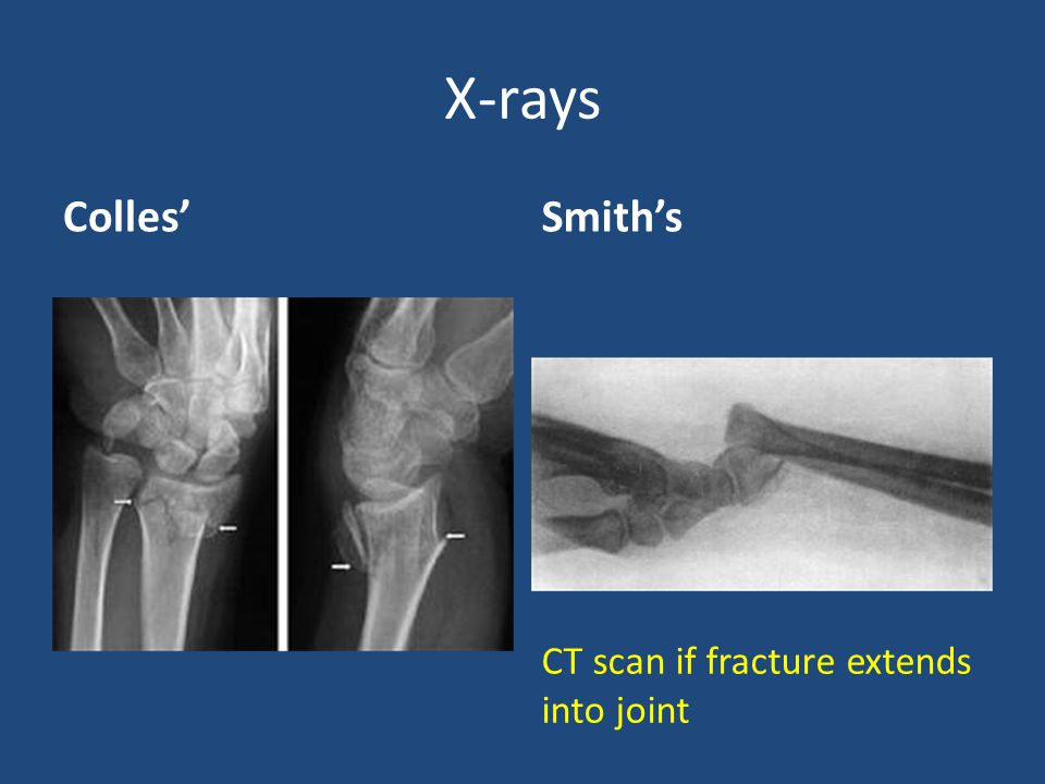 smith fracture x ray - 960×720