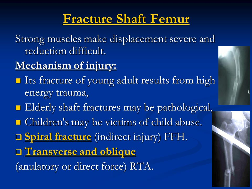 Extracapsular Fractures - ppt video online download