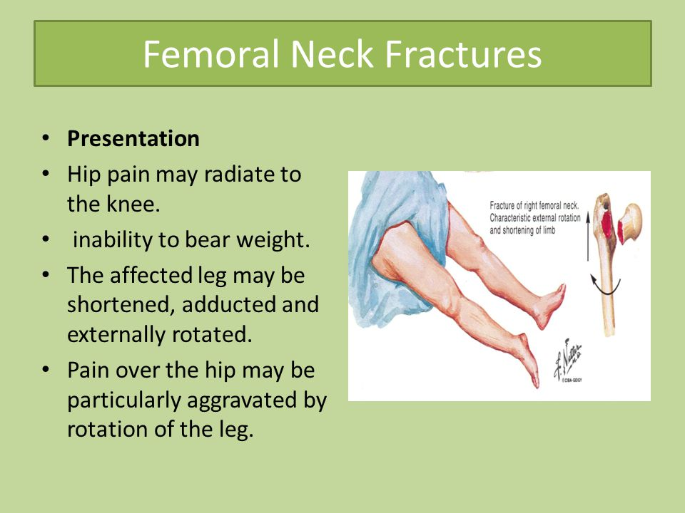 Common Lower Limb Fracture Ppt Video Online Download
