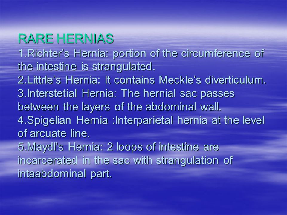 RARE HERNIAS 1.Richter's Hernia: portion of the circumference of the intestine is strangulated.