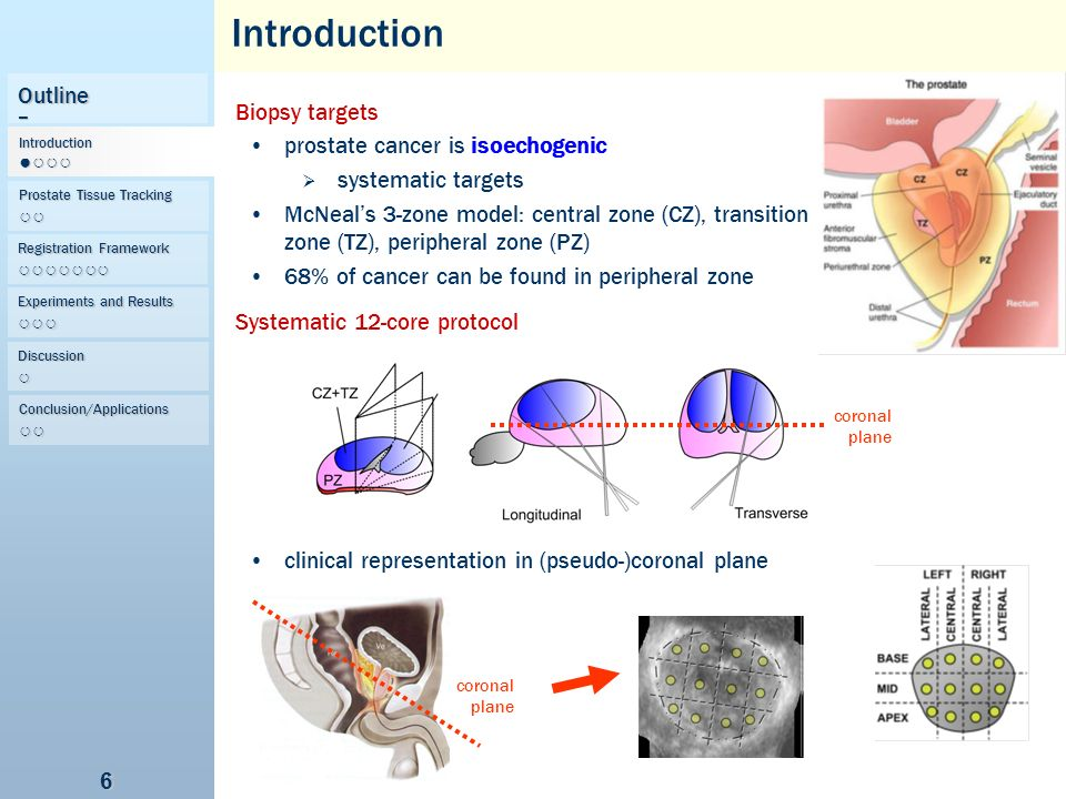 Introduction Outline Biopsy targets prostate cancer is isoechogenic