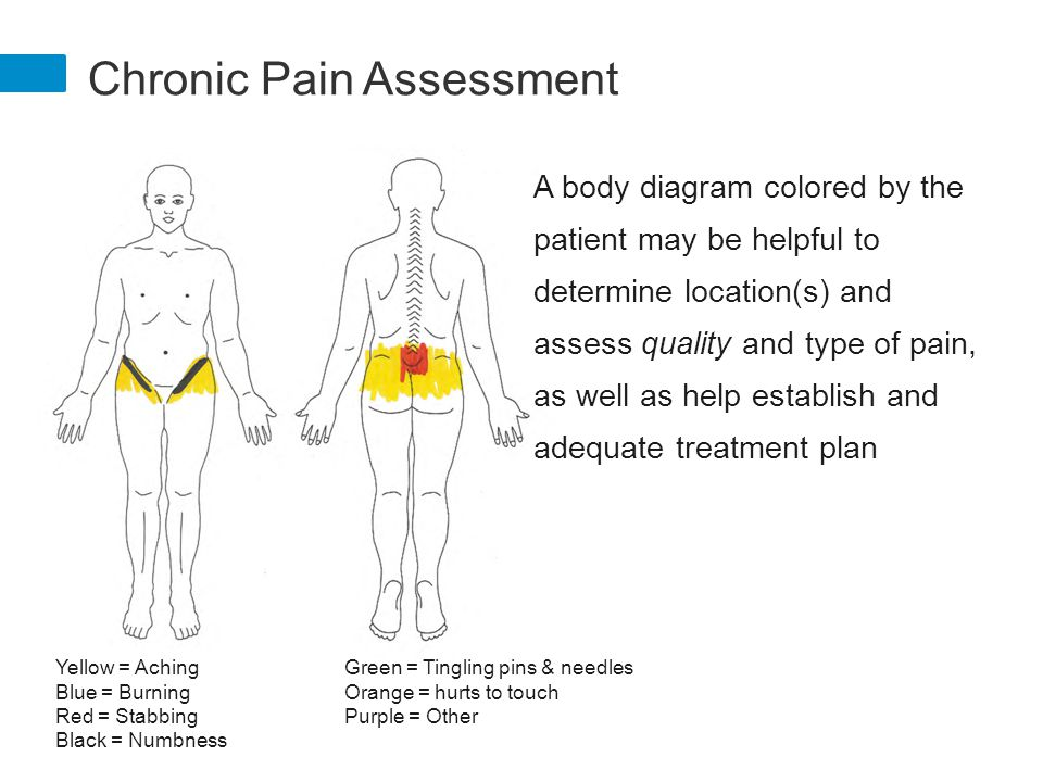 Special management challenges ppt download chronic pain assessment ccuart Image collections