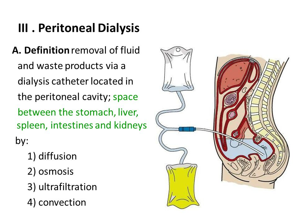 Peritoneal Dialysis Kidney Ap Ppt Video Online Download