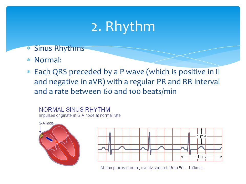 2. Rhythm Sinus Rhythms Normal: