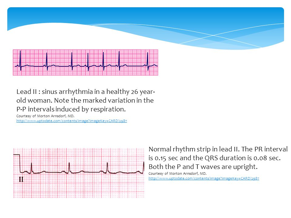 Lead II : sinus arrhythmia in a healthy 26 year-old woman