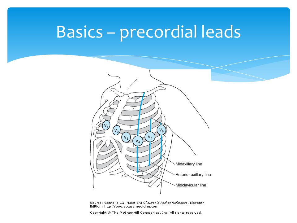Basics – precordial leads
