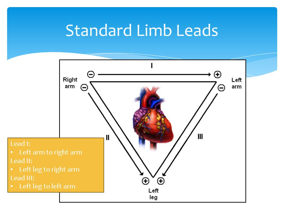 Standard Limb Leads Lead I: Left arm to right arm Lead II: