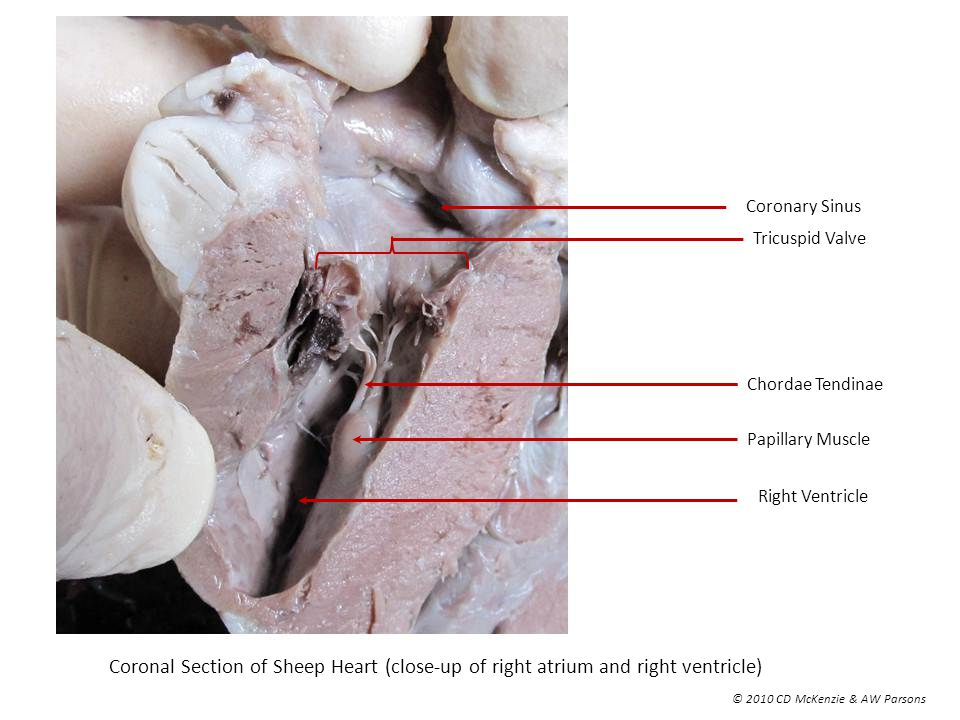 Anterior View Of Sheep Heart Ppt Video Online Download